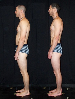 Before and after picture of client showing enhanced postural alignment as a result of the Ten Series